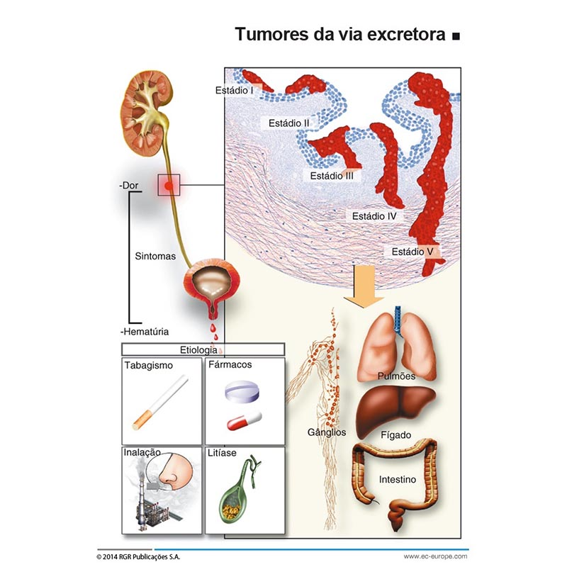 cancer trato urin superior