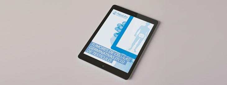 E-book – Tumores de Células Germinativas (TCG) de Testículo