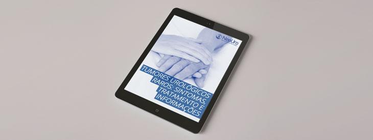 E-book – Tumores Urológicos Raros: Sintomas, Tratamento e Informações