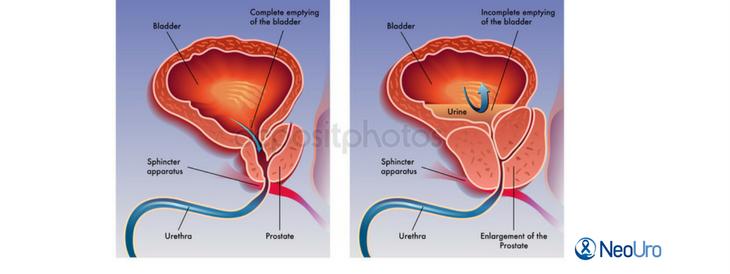 Introdução do aparelho para RTU de próstata (1)