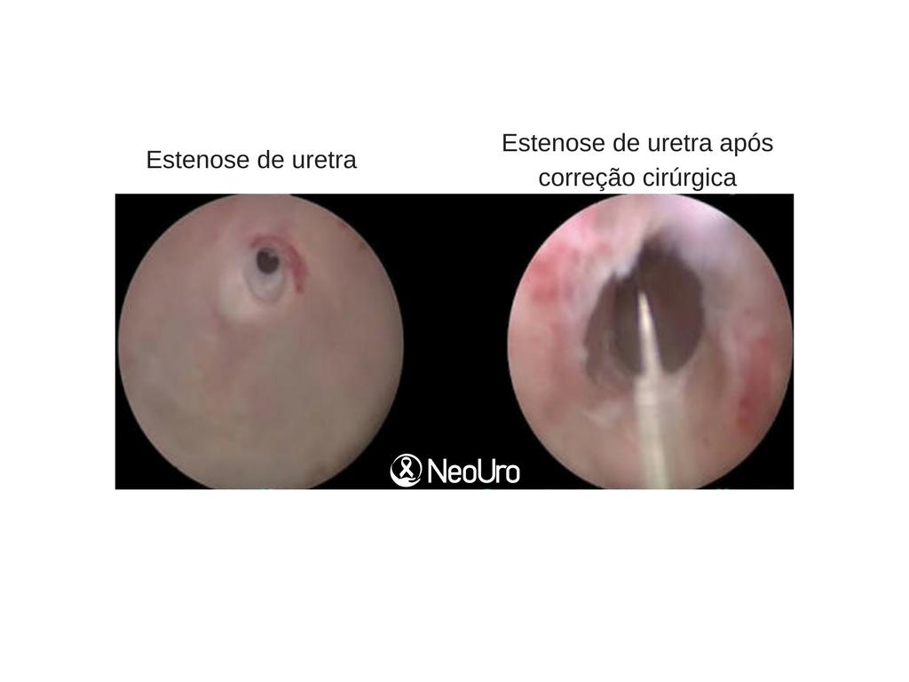 cancer de uretra feminina