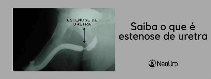 O que é estenose de uretra?
