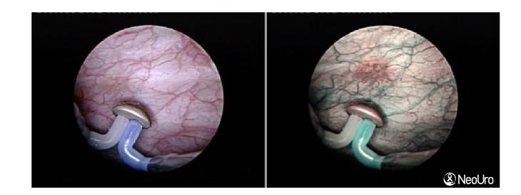 NeoUro e NBI: nova tecnologia para detecção do câncer de bexiga
